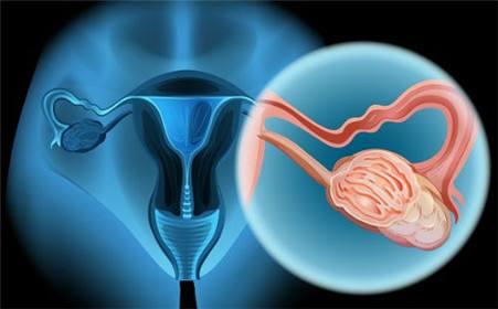 宫颈癌的发病原因