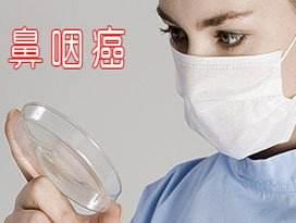 鼻咽癌初期治疗方式