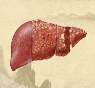 缓解肝癌晚期疼痛的方法