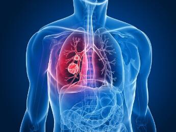 肺癌中医结合治疗
