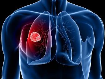 肺癌西医常规治疗方法