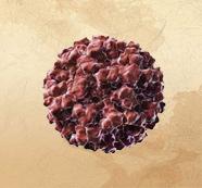 脂肪肉瘤应如何治疗