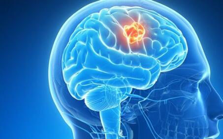脑瘤中医治疗优势