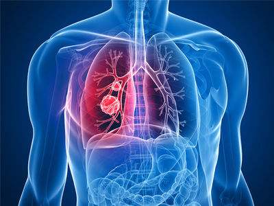 肺癌化疗后的危害