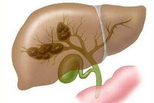 胆管癌手术治疗类型