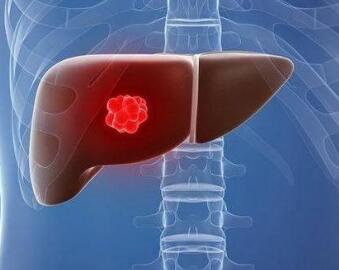 肝癌中医怎么医治
