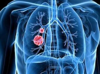 肺癌晚期怎样治疗比较好