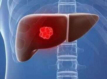 肝癌几种常见的治疗方法