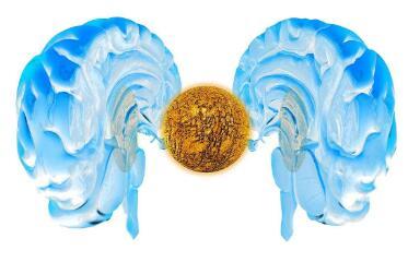脑肿瘤要做哪些检查呢