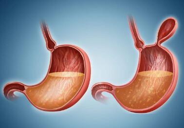 胃癌预防事项有哪些