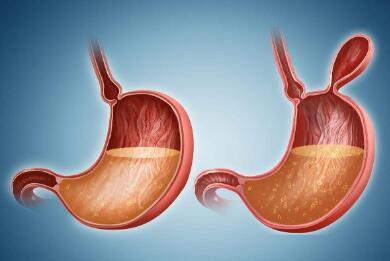 胃癌术后遵循的原则