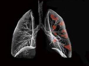 肺癌的发病原因是什么