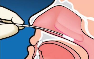 鼻咽癌的患病原因