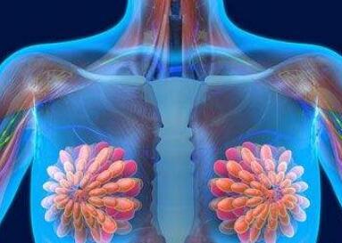 乳腺癌术后饮食常识