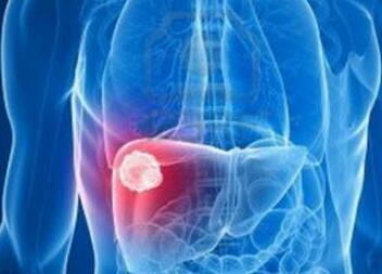 肝癌术后护理方法