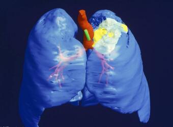 肺癌怎样预防护理