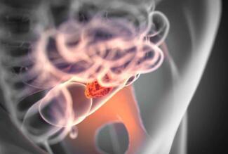 肠癌该如何进行检查