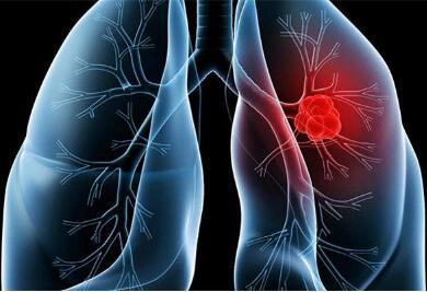 肺癌放疗治疗结果怎样