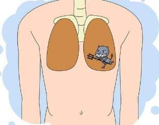 肺癌化疗有何危害