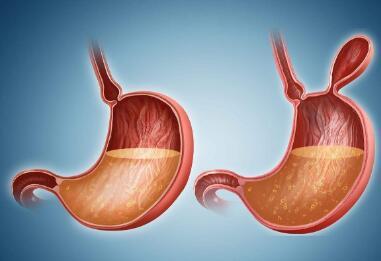胃癌术后常见的并发症