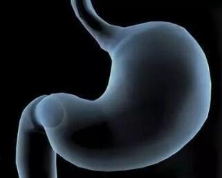 胃癌切除术哪种好