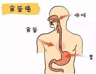 食道癌中医治疗好吗