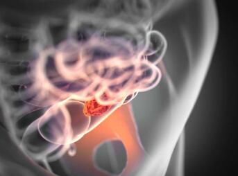 直肠癌手术治疗的事项