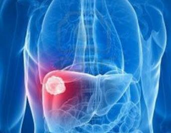 肝癌的治疗原则是什么