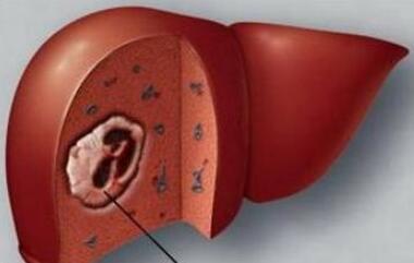 肝癌会有哪些治疗误区