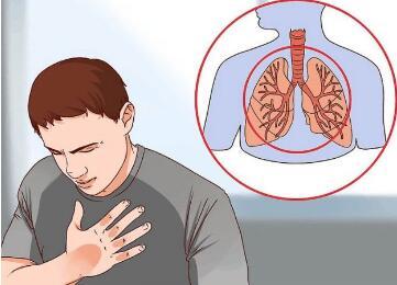 肺癌术后的常用护理方式