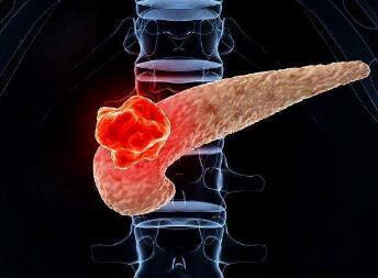 胰腺癌的并发症有哪些
