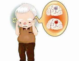 脑瘤该怎样进行检查呢