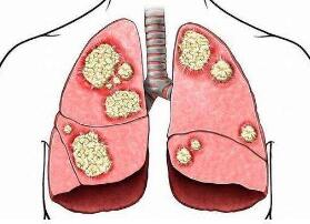 肺鳞癌复发后如何筛查