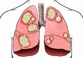 肺癌中西医互补治疗方法