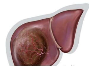 肝癌疼痛的治疗方式