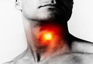 喉癌的基本治疗常识