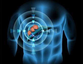 肝癌晚期病人生存期