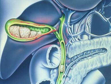 胆管癌晚期的症状表现