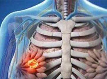 乳腺癌该怎样配合治疗