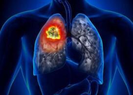 肺癌放疗有哪些异常症状
