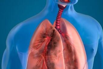 肺癌脑转移该怎么办