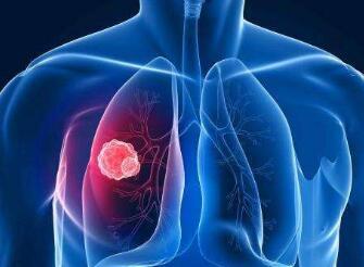 肺癌化疗有何危害呢