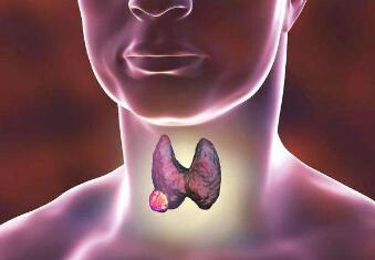 甲状腺癌该怎样配合医治