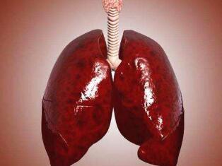 小细胞肺癌的治疗时期