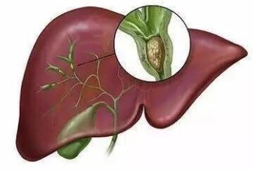 胆管癌术后有哪些并发症