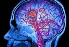 脑瘤早期症状表现需知