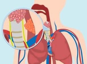 食道癌具体治疗手段