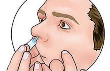 鼻咽癌常规治疗方法