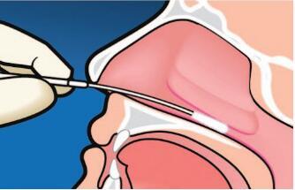 鼻咽癌晚期怎样治疗