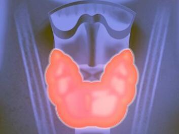 甲状腺癌的常见并发症